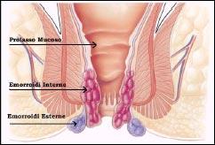 Come guarirà farmaci di emorroidi esterni