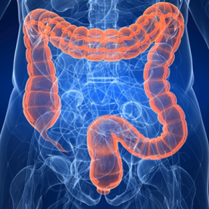 Diverticoli intestinali