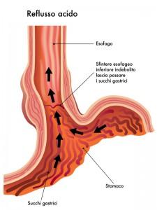 Reflusso gastrico