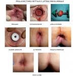 Endo-Luminal Prolapsectomy  cura emorroifi