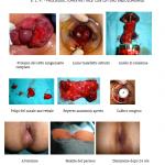 Elp-cura-emorroidi